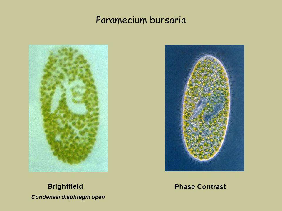 Paramecium bursaria Phase Contrast Condenser diaphragm open Brightfield