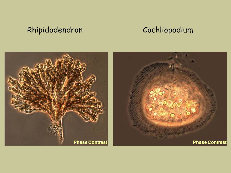 Rhipidodendron Phase Contrast Cochliopodium Phase Contrast