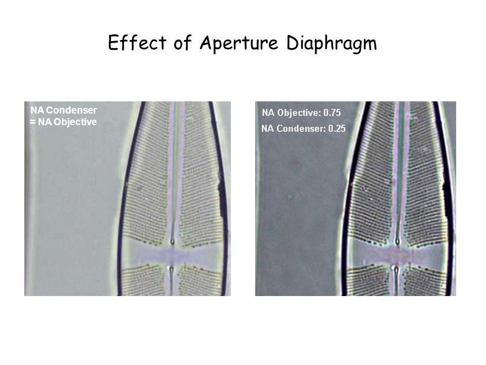 Paramecium bursaria Condenser diaphragm openCondenser Diaphragm almost closed