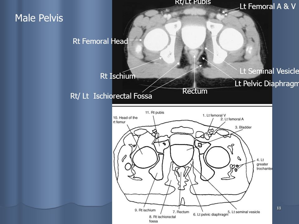 11 Male Pelvis Rt/Lt Pubis Lt Femoral A & V Lt Seminal Vesicle Lt Pelvic Diaphragm Rectum Rt/ Lt Ischiorectal Fossa Rt Ischium Rt Femoral Head