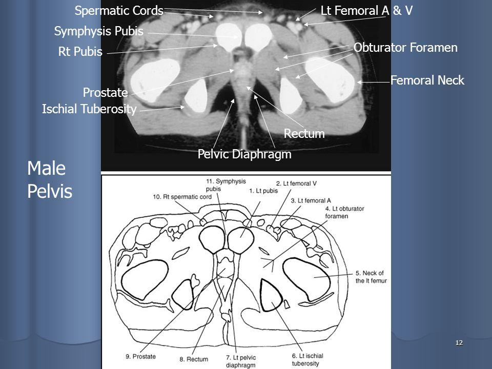 12 Pelvic Diaphragm Rectum Prostate Ischial Tuberosity Spermatic Cords Symphysis Pubis Rt Pubis Lt Femoral A & V Femoral Neck Obturator Foramen Male Pelvis