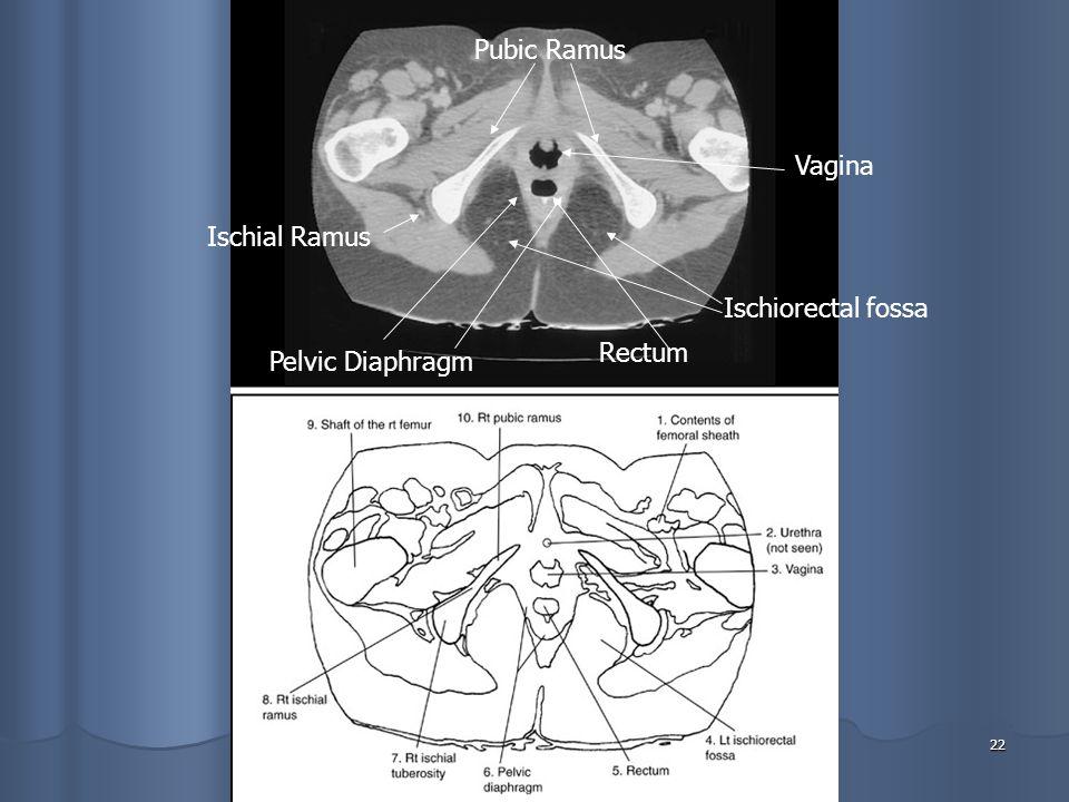 22 Vagina Ischiorectal fossa Rectum Pelvic Diaphragm Pubic Ramus Ischial Ramus