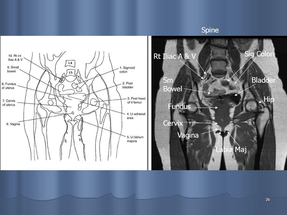26 Labia Maj Vagina Cervix Fundus Sm Bowel Rt Iliac A & V Spine Sig Colon Bladder Hip