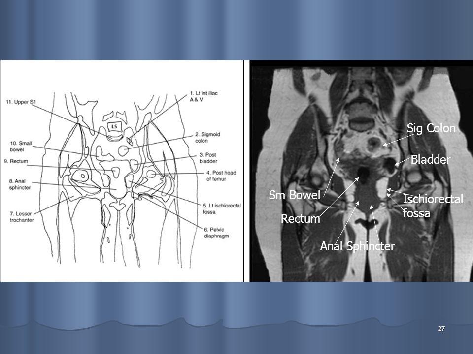 27 Anal Sphincter Rectum Sm Bowel Sig Colon Ischiorectal fossa Bladder