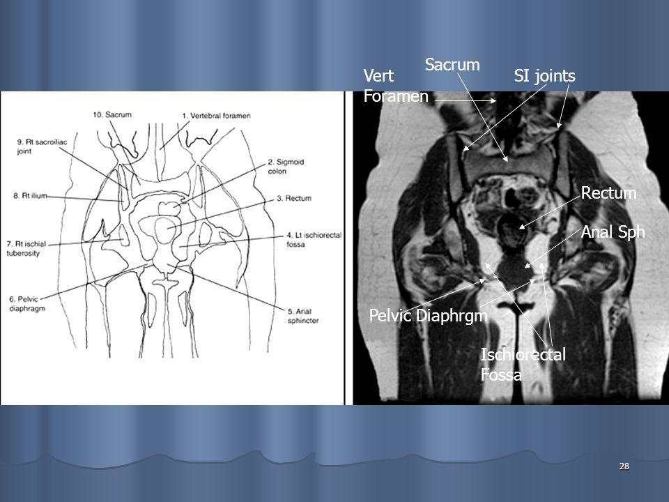 28 SI jointsVert Foramen Sacrum Ischiorectal Fossa Pelvic Diaphrgm Rectum Anal Sph