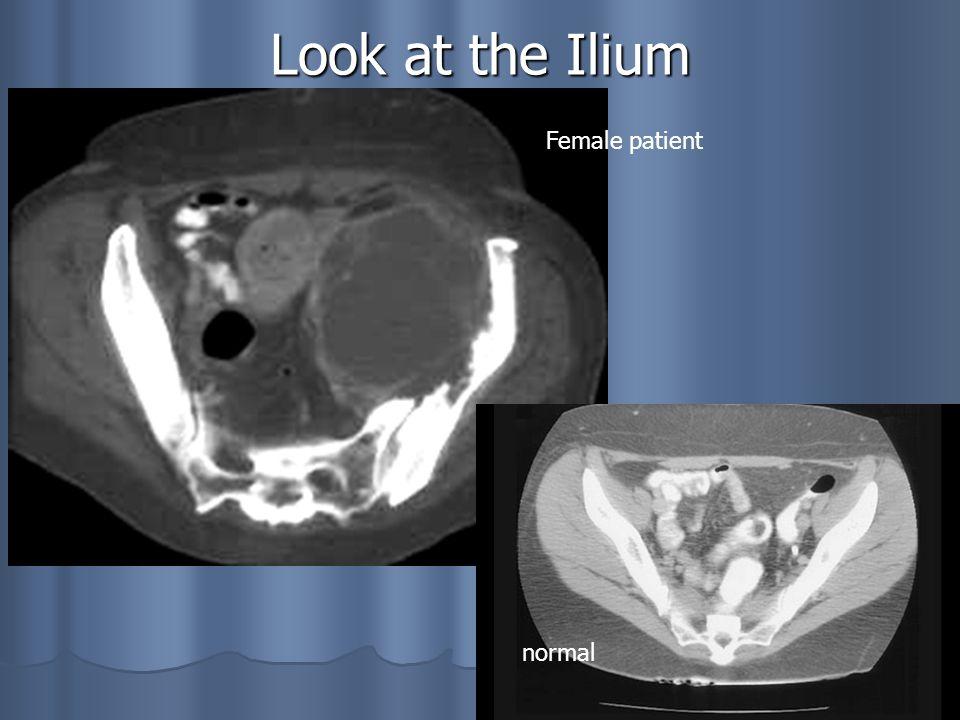 29 Look at the Ilium normal Female patient