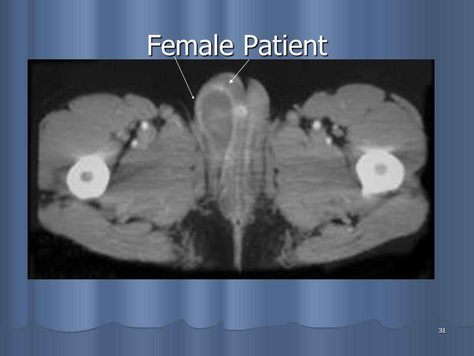 31 Female Patient