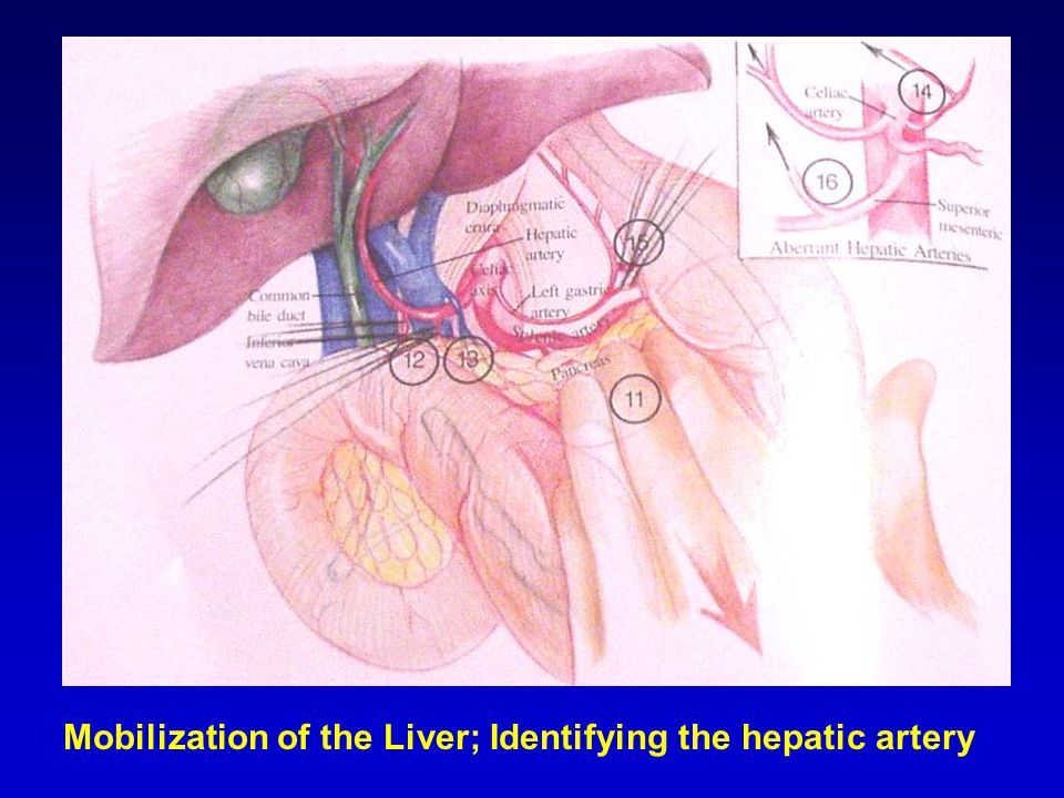 Mobilization of the Liver; Identifying the hepatic artery