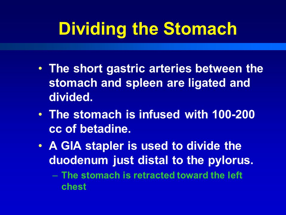 Dividing the Stomach The short gastric arteries between the stomach and spleen are ligated and divided.