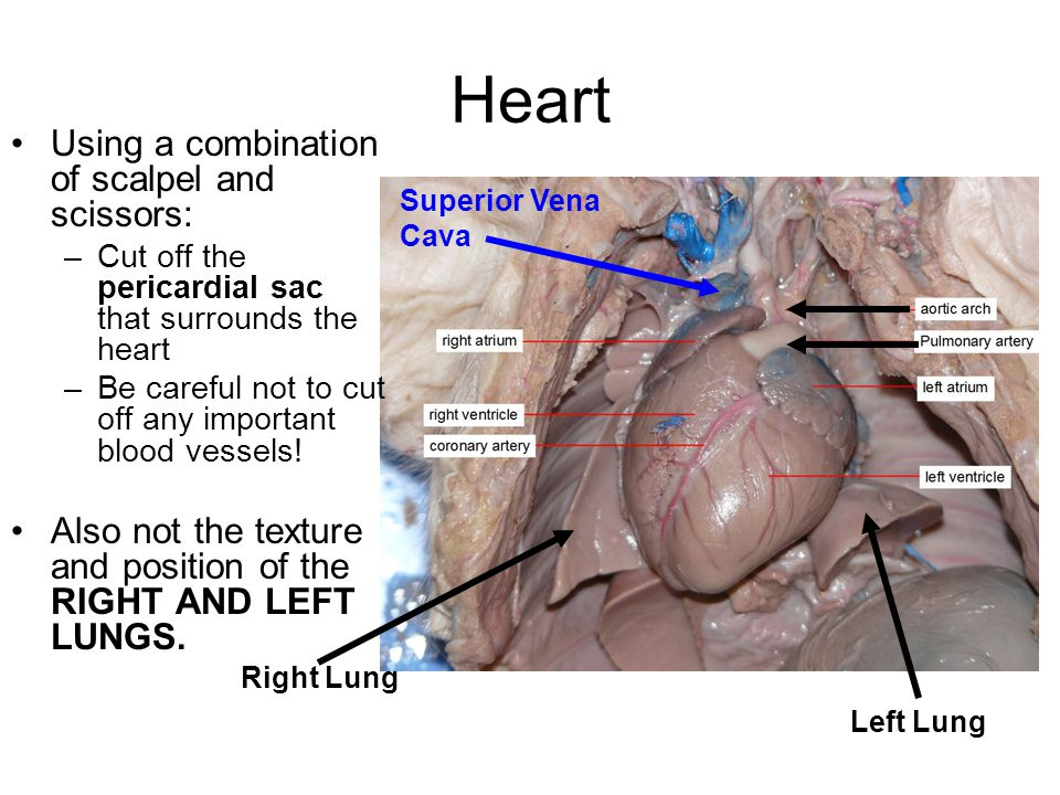 Heart Using a combination of scalpel and scissors: –Cut off the pericardial sac that surrounds the heart –Be careful not to cut off any important bloo
