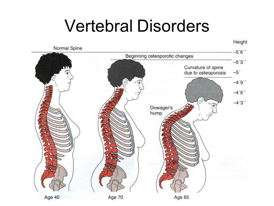 Vertebral Disorders