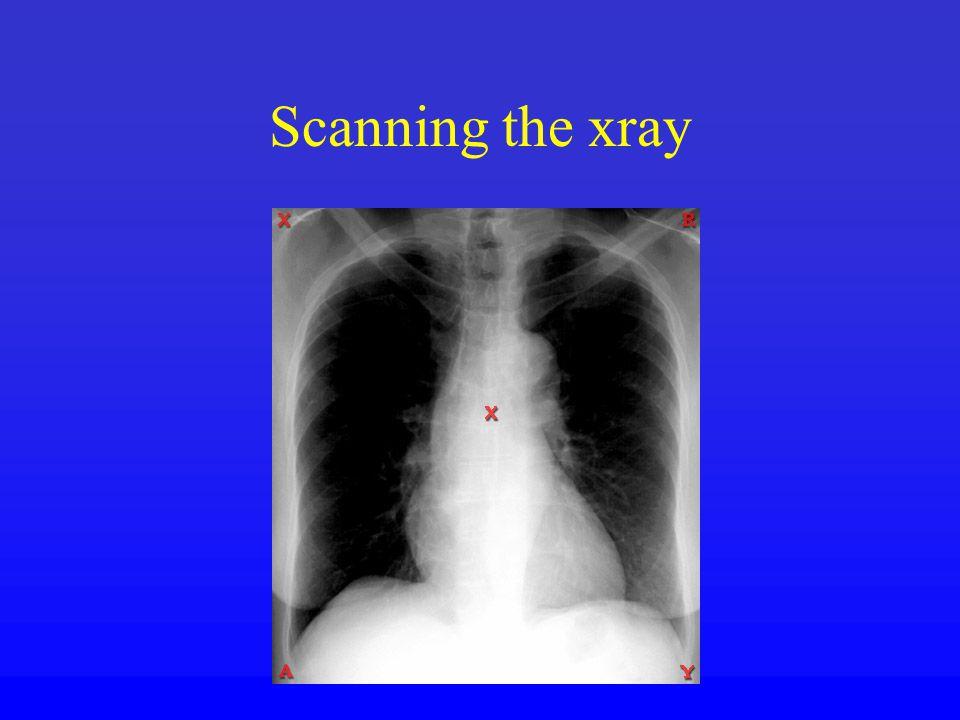 Scanning the xray