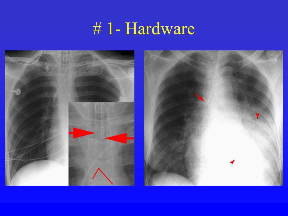 # 1- Hardware