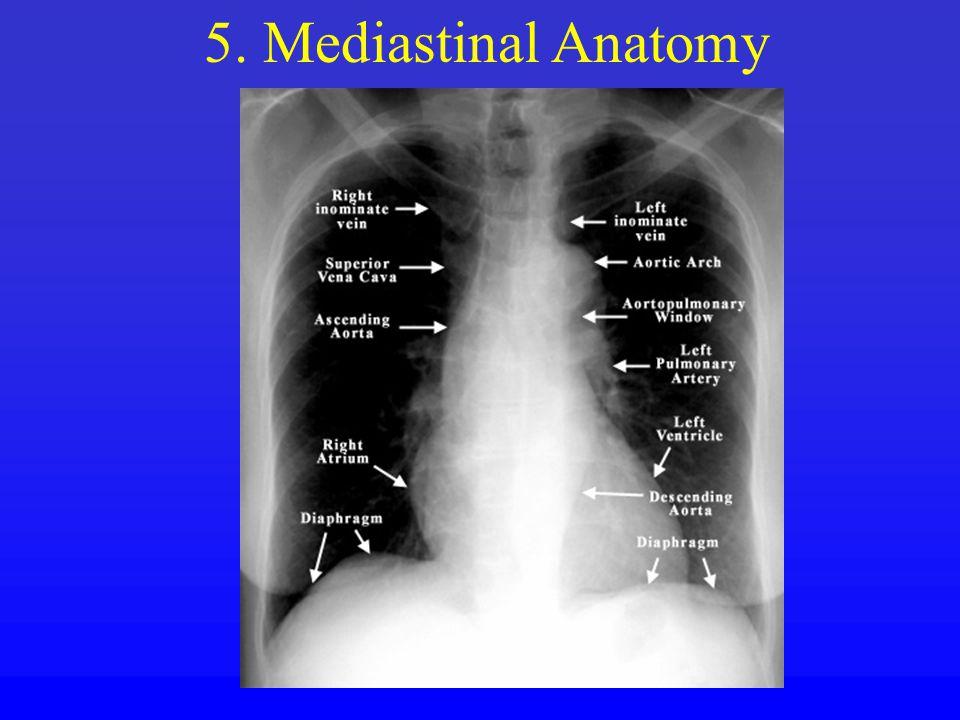 5. Mediastinal Anatomy