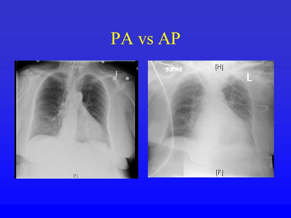 PA vs AP
