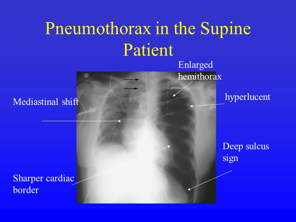 Pneumothorax in the Supine Patient Deep sulcus sign hyperlucent Enlarged hemithorax Mediastinal shift Sharper cardiac border