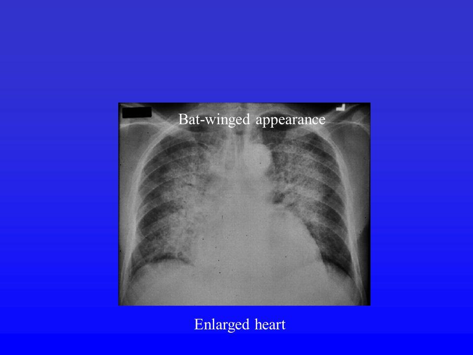 Bat-winged appearance Enlarged heart