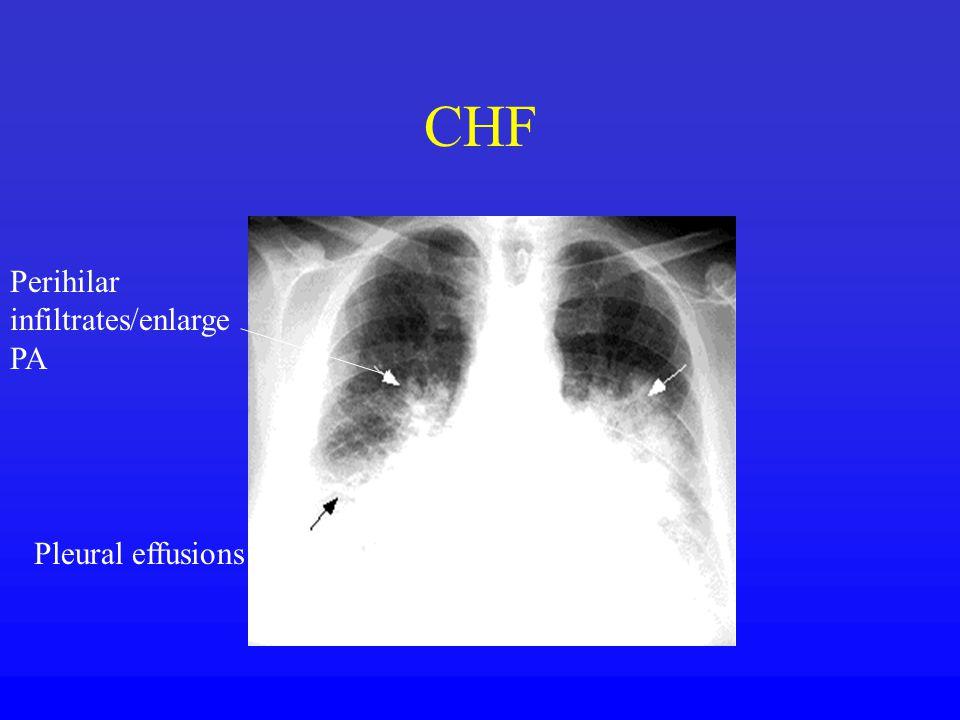 CHF Perihilar infiltrates/enlarge PA Pleural effusions