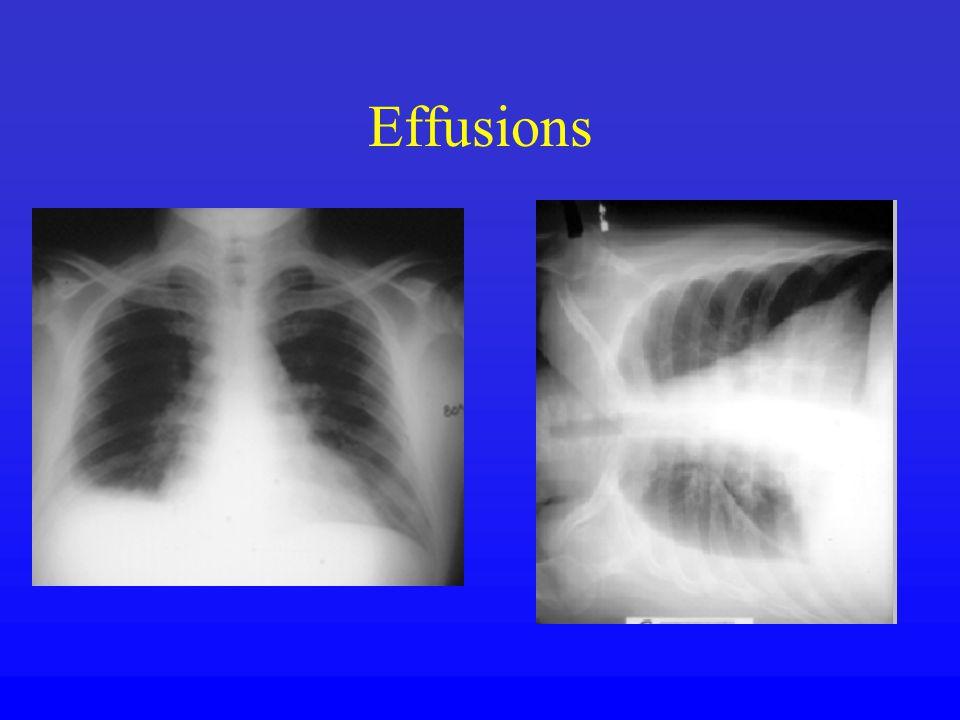 Effusions