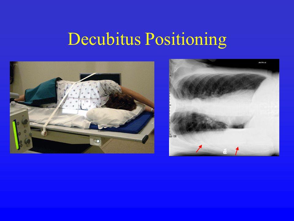 Decubitus Positioning