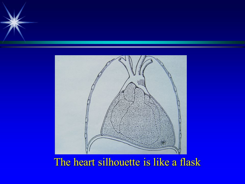 The heart silhouette is like a flask