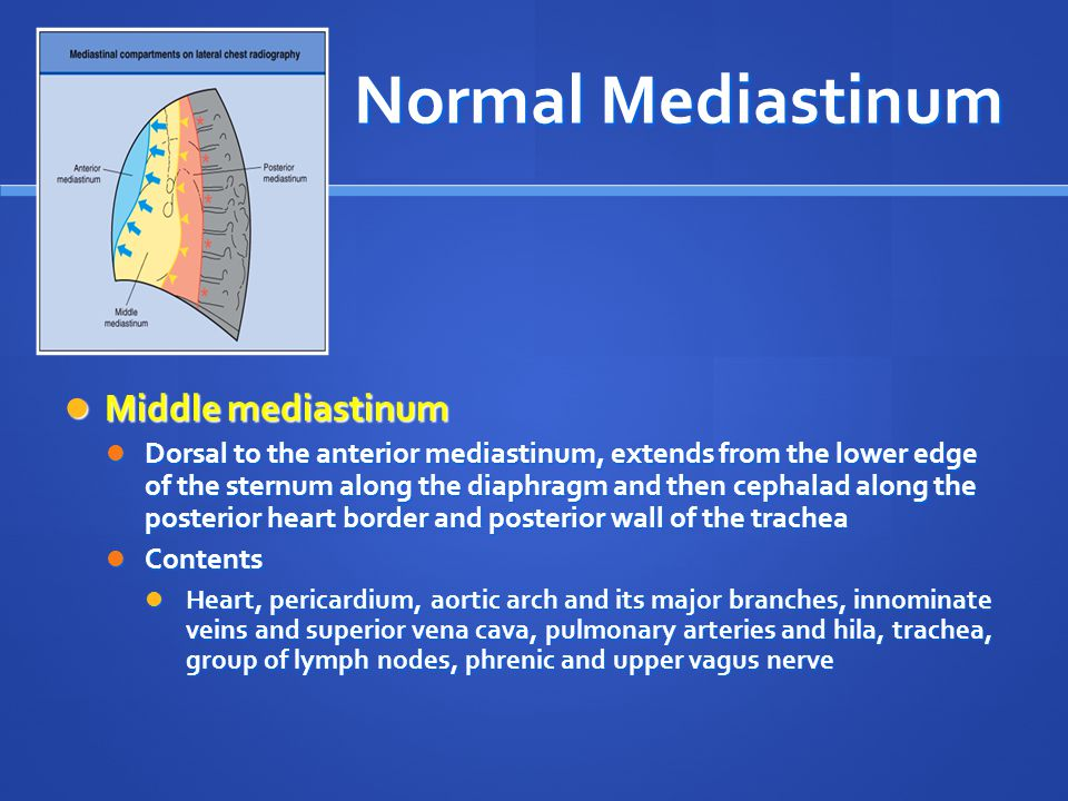 Normal Mediastinum Middle mediastinum Middle mediastinum Dorsal to the anterior mediastinum, extends from the lower edge of the sternum along the diap