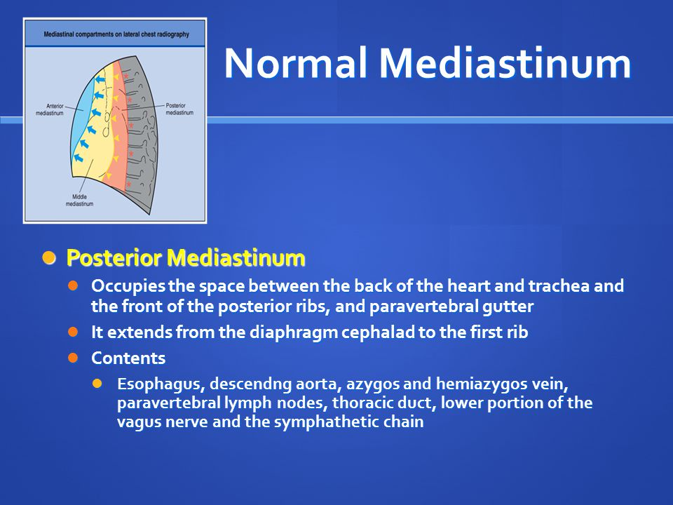 Normal Mediastinum Posterior Mediastinum Posterior Mediastinum Occupies the space between the back of the heart and trachea and the front of the poste