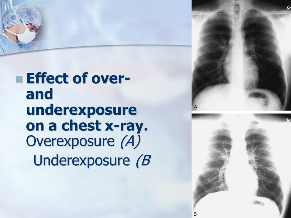 Effect of over- and underexposure on a chest x-ray. Overexposure (A) Effect of over- and underexposure on a chest x-ray. Overexposure (A) Underexposur