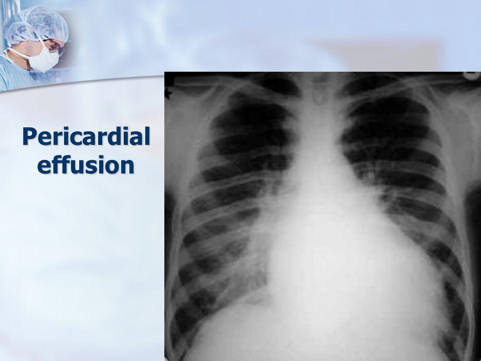 Pericardial effusion