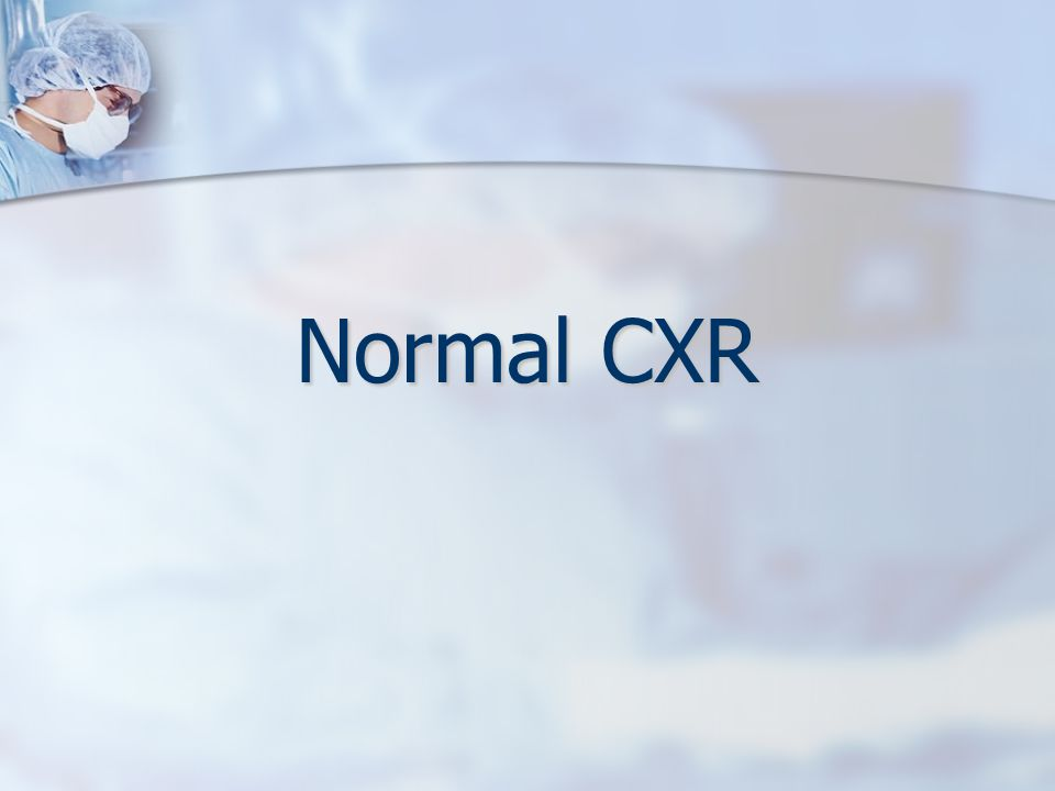 Features that are typically examined on a chest X-ray Every doctor will have a different approach to examining chest X-rays.