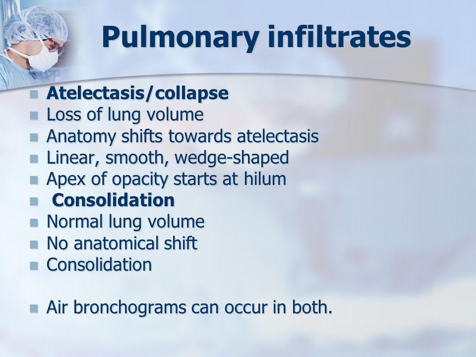 Pulmonary infiltrates Atelectasis/collapse Atelectasis/collapse Loss of lung volume Loss of lung volume Anatomy shifts towards atelectasis Anatomy shi