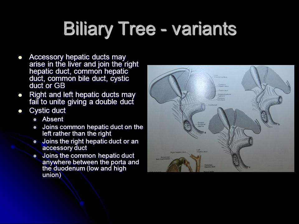 Biliary Tree - variants Accessory hepatic ducts may arise in the liver and join the right hepatic duct, common hepatic duct, common bile duct, cystic