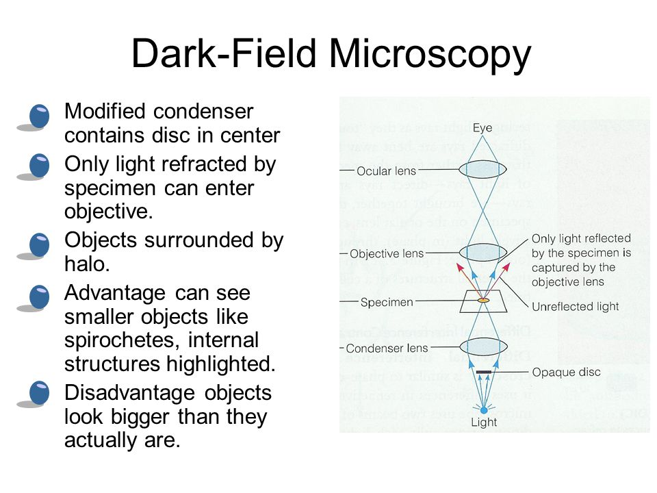 02 dissecting microscope a b carrying a microscope ppt download dark field microscopy modified condenser contains disc in center only light refracted by specimen can ccuart Images