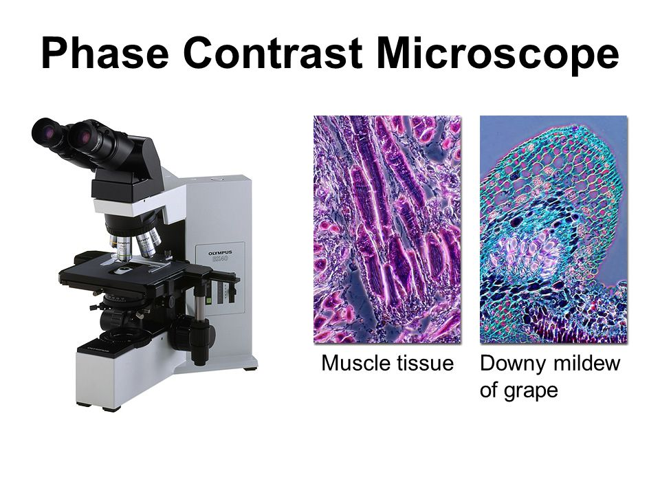 Phase Contrast Microscope Muscle tissueDowny mildew of grape