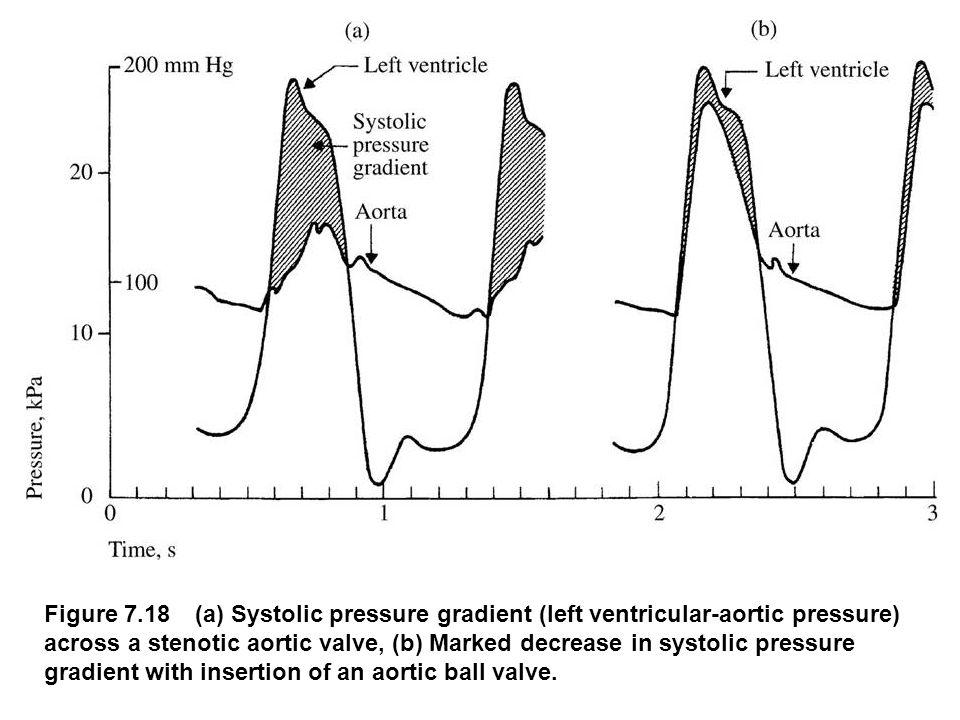 Figure 7.18 (a) Systolic pressure gradient (left ventricular-aortic pressure) across a stenotic aortic valve, (b) Marked decrease in systolic pressure