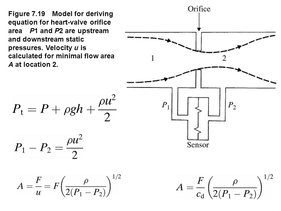 fig_07_19 Figure 7.19 Model for deriving equation for heart-valve orifice area P1 and P2 are upstream and downstream static pressures. Velocity u is c