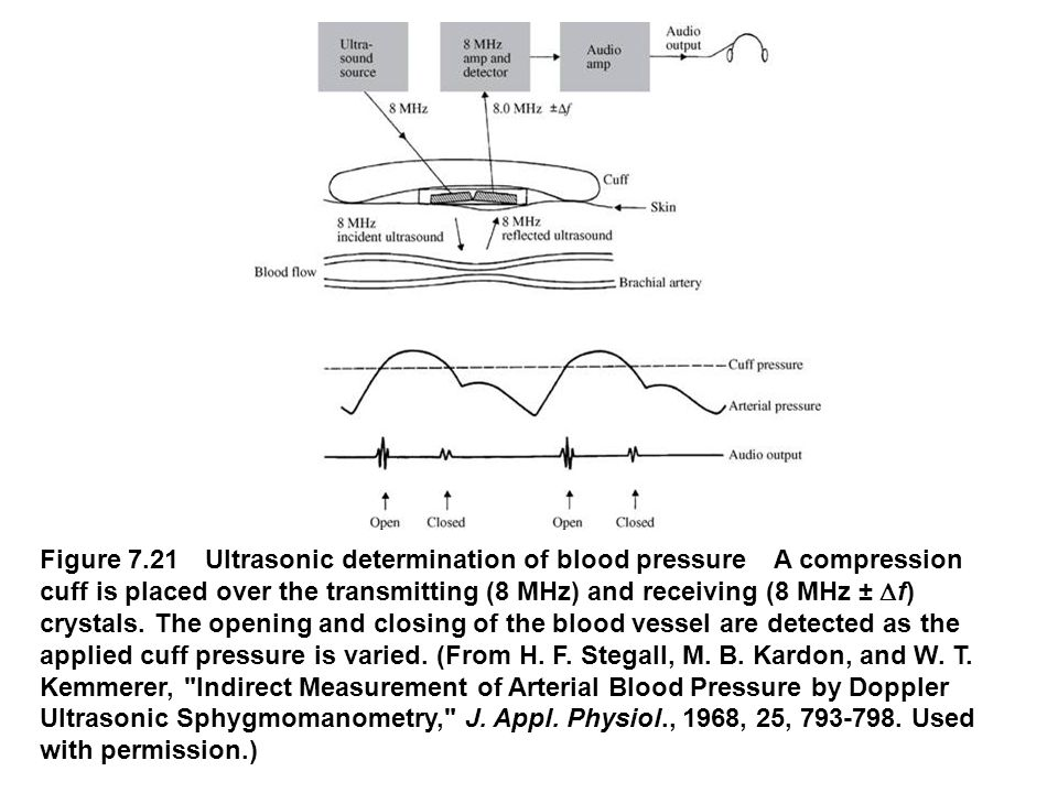 Figure 7.21 Ultrasonic determination of blood pressure A compression cuff is placed over the transmitting (8 MHz) and receiving (8 MHz ±  f) crystals
