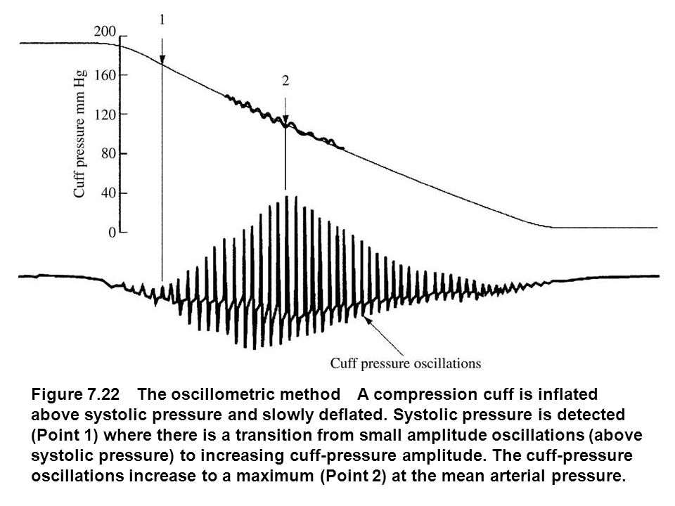 Figure 7.22 The oscillometric method A compression cuff is inflated above systolic pressure and slowly deflated. Systolic pressure is detected (Point