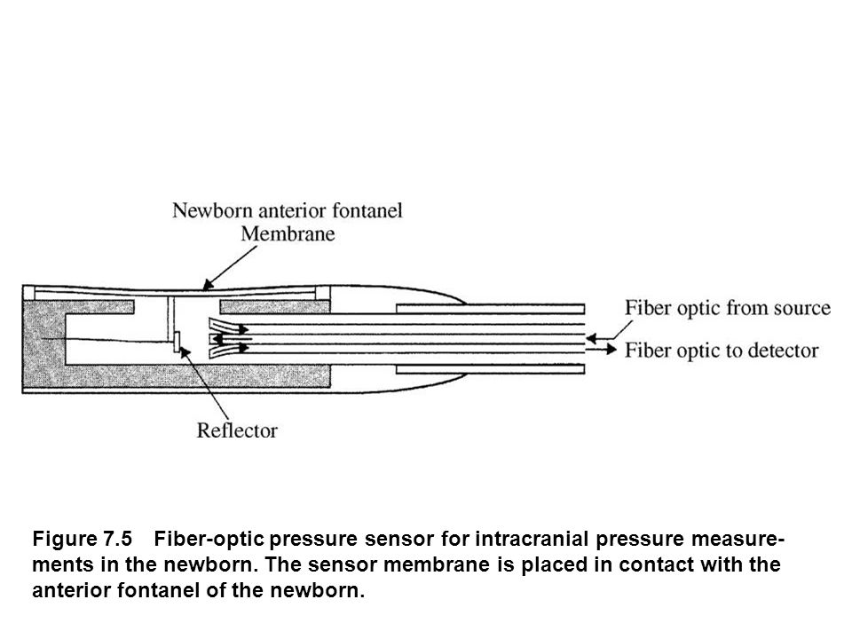 Figure 7.5 Fiber-optic pressure sensor for intracranial pressure measure ments in the newborn. The sensor membrane is placed in contact with the ante
