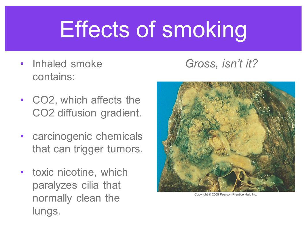 Effects of smoking Inhaled smoke contains: CO2, which affects the CO2 diffusion gradient. carcinogenic chemicals that can trigger tumors. toxic nicoti