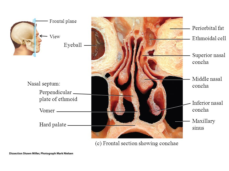1 3 2 4 Anterior view 1.Root: Superior attachment of the nose to the frontal bone 2.