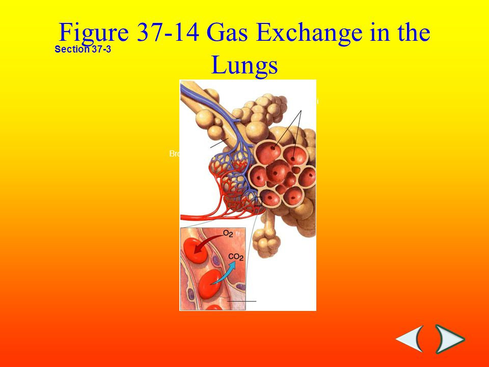 Lung: Above: Normal city dwellers lung.