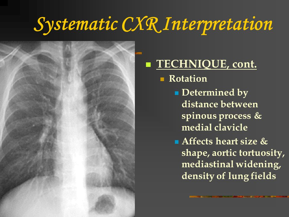 Systematic CXR Interpretation TECHNIQUE, cont. Rotation Determined by distance between spinous process & medial clavicle Affects heart size & shape, a