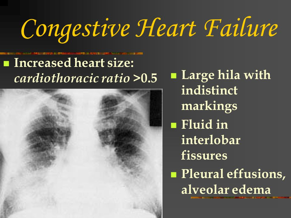 Congestive Heart Failure Increased heart size: cardiothoracic ratio >0.5 Large hila with indistinct markings Fluid in interlobar fissures Pleural effu