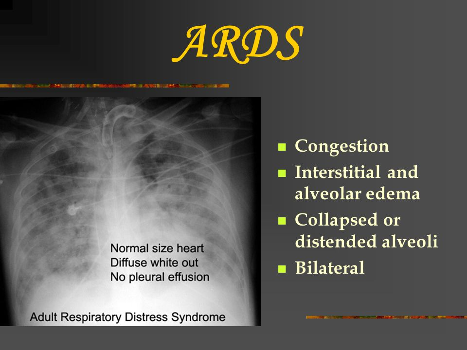 ARDS Congestion Interstitial and alveolar edema Collapsed or distended alveoli Bilateral