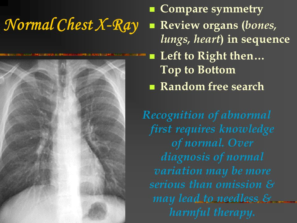 Chest X-Ray Findings Is heart enlarged or normal.Signs of heart failure and fluid overload.