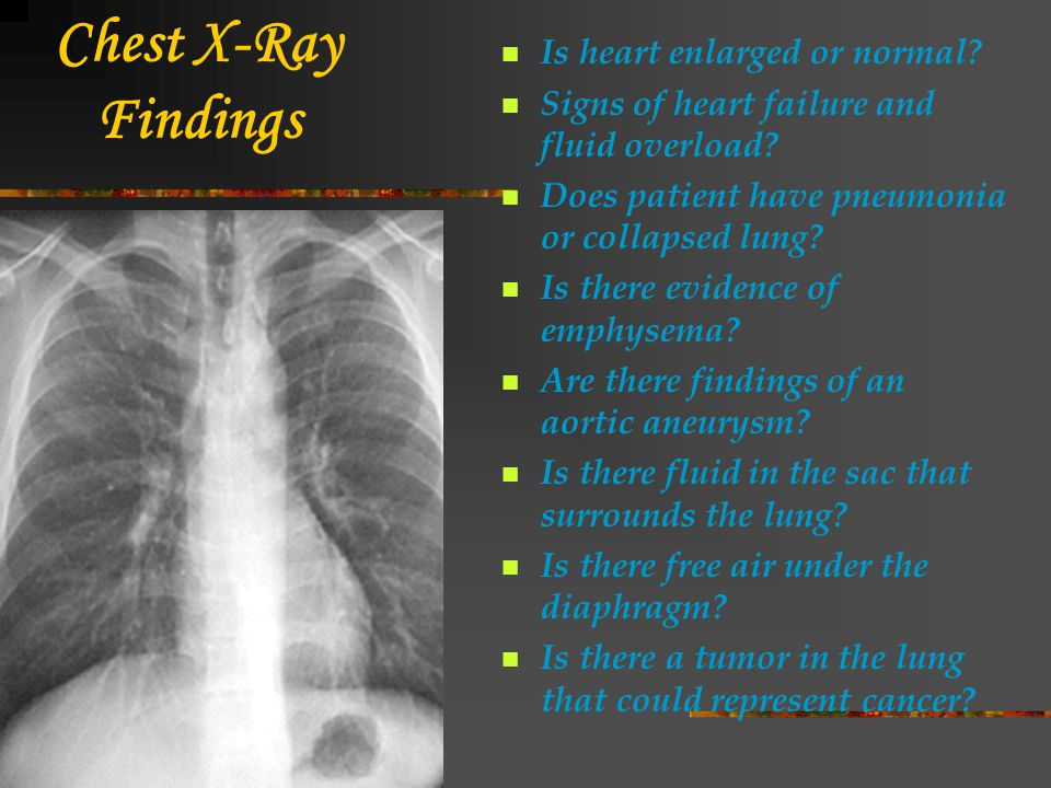 Chest X-Ray Findings Is heart enlarged or normal? Signs of heart failure and fluid overload? Does patient have pneumonia or collapsed lung? Is there e