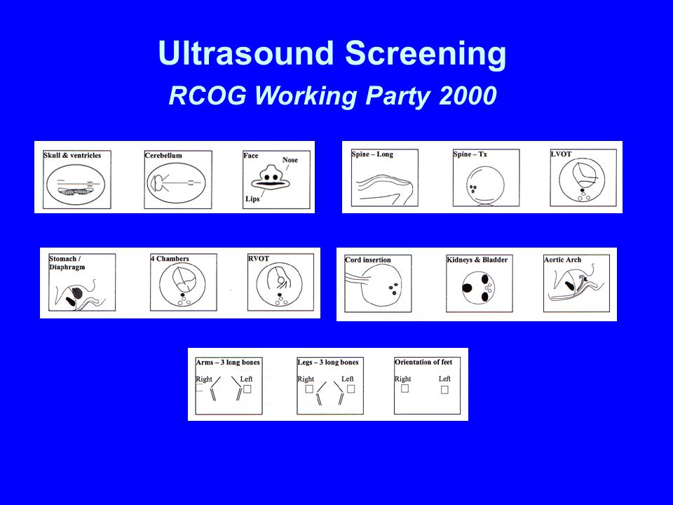 Evaluation of Routine Obstetric Ultrasound Examination in detecting Fetal Structural Abnormalities in Low Risk Pregnancies WC Leung, CP Lee, MHY Tang Department of Obstetrics & Gynaecology, Tsan Yuk Hospital, The University of Hong Kong, Hong Kong, China Objective: To evaluate routine obstetric ultrasound examination in detecting fetal structural abnormalities in low risk pregnancies.