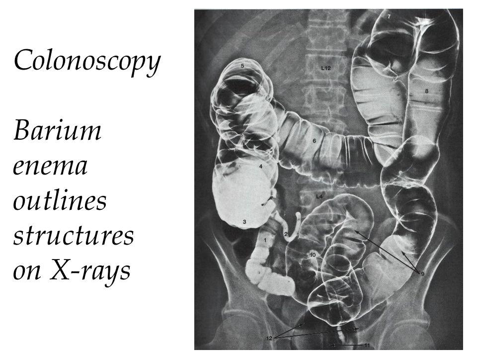 Colonoscopy Barium enema outlines structures on X-rays