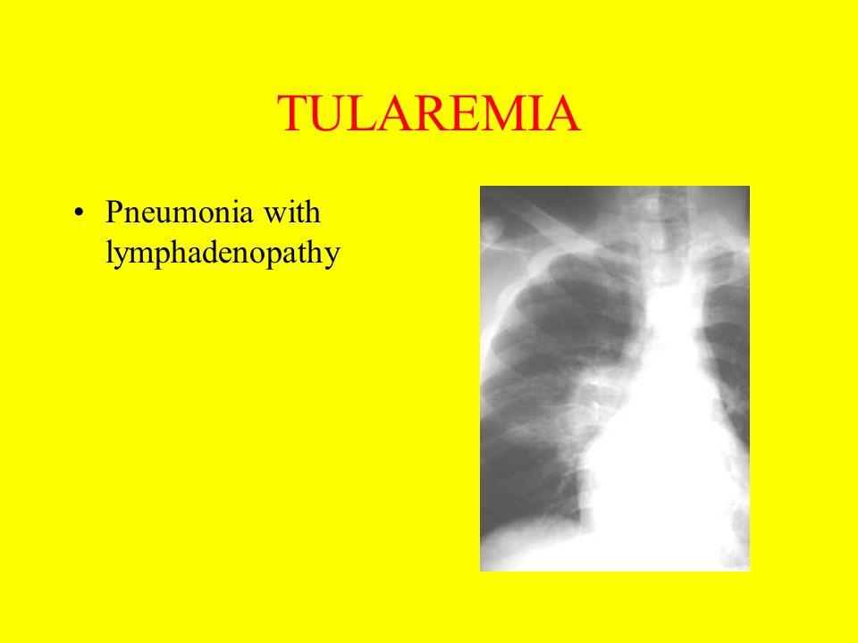 TULAREMIA Pneumonia with lymphadenopathy